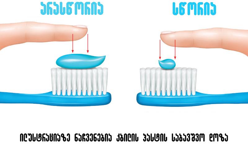 კბილის პასტა