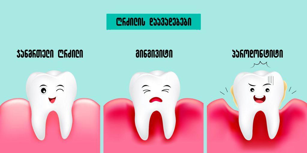 parodontiti