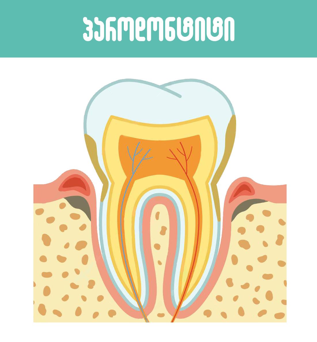 პაროდონტიტი,parodontiti,პაროდონტოლოგია